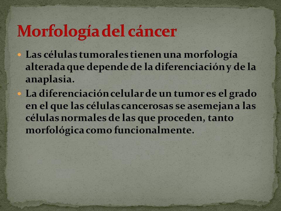 Las células tumorales tienen una morfología alterada que depende de la diferenciación y de la anaplasia.