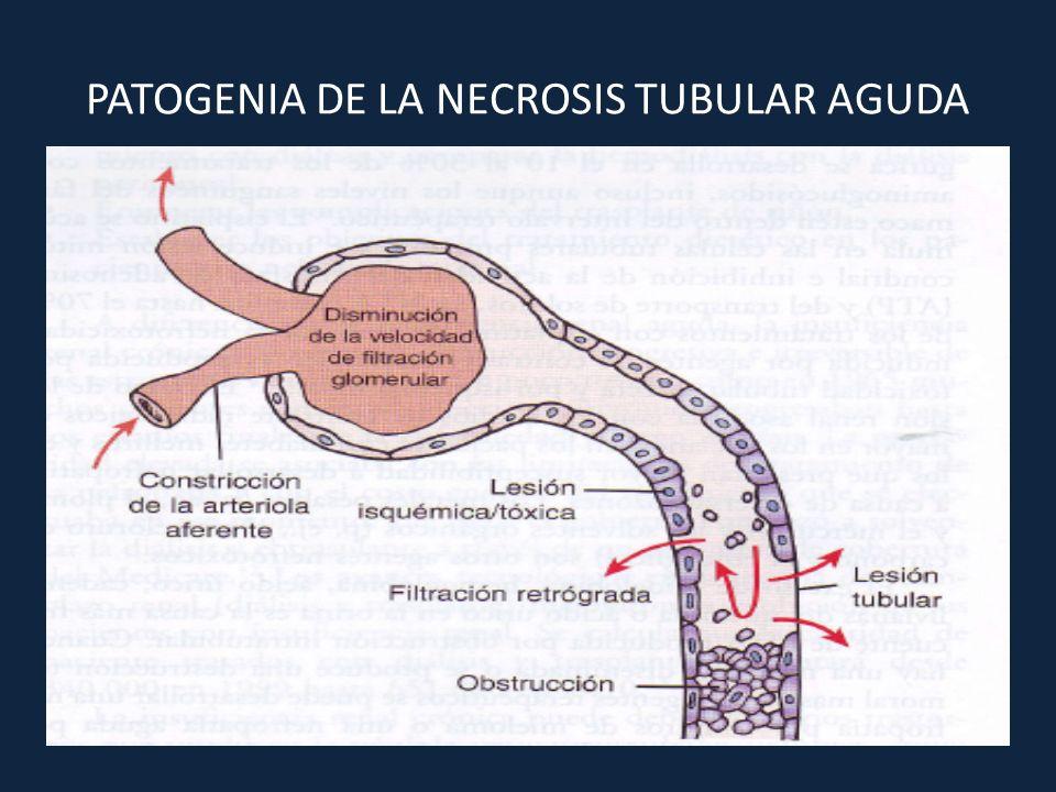PATOGENIA DE LA NECROSIS TUBULAR AGUDA