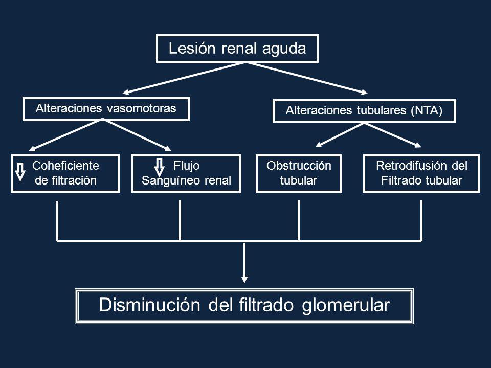 Lesión renal aguda Obstrucción tubular Retrodifusión del Filtrado tubular Coheficiente de filtración Flujo Sanguíneo renal Alteraciones vasomotoras Al