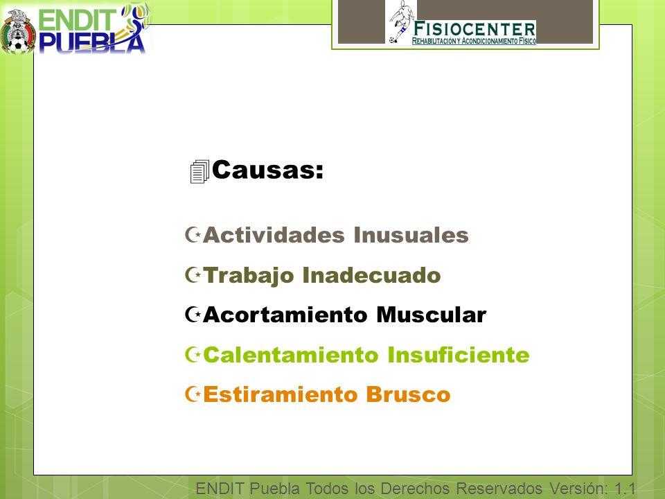 4Causas: ZActividades Inusuales ZTrabajo Inadecuado ZAcortamiento Muscular ZCalentamiento Insuficiente ZEstiramiento Brusco