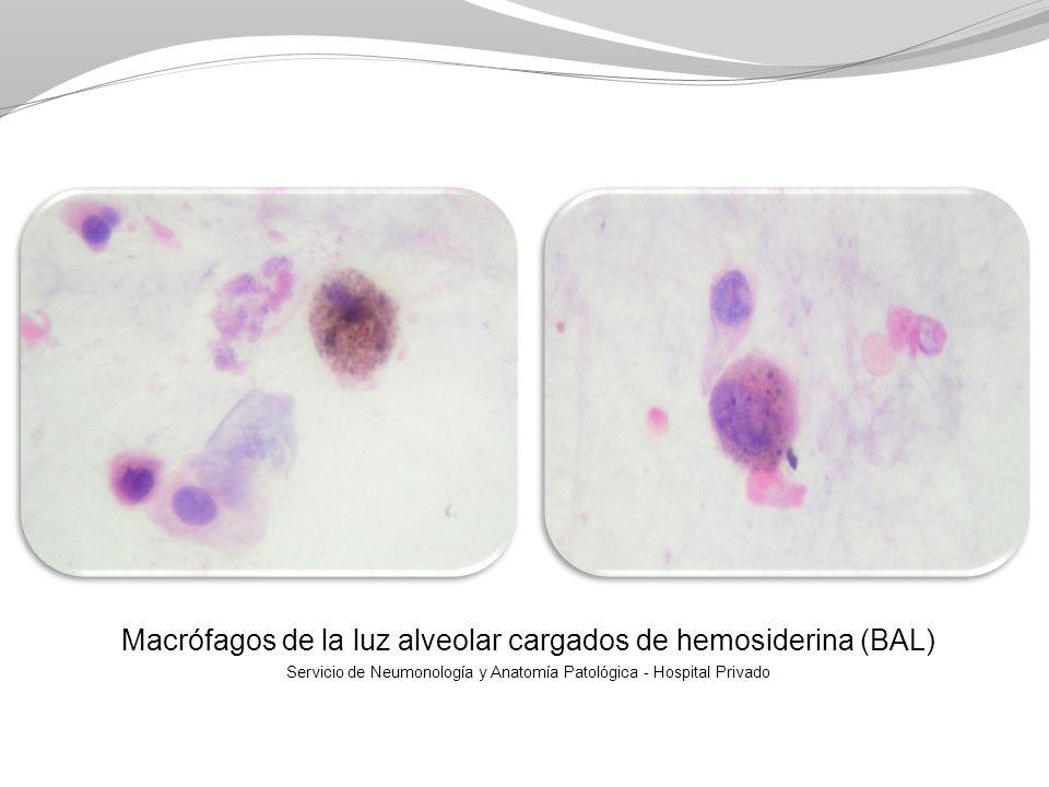 Macrófagos de la luz alveolar cargados de hemosiderina (BAL) Servicio de Neumonología y Anatomía Patológica - Hospital Privado