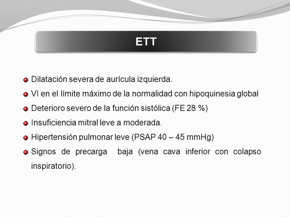 ETTETT Dilatación severa de aurícula izquierda. VI en el límite máximo de la normalidad con hipoquinesia global Deterioro severo de la función sistóli
