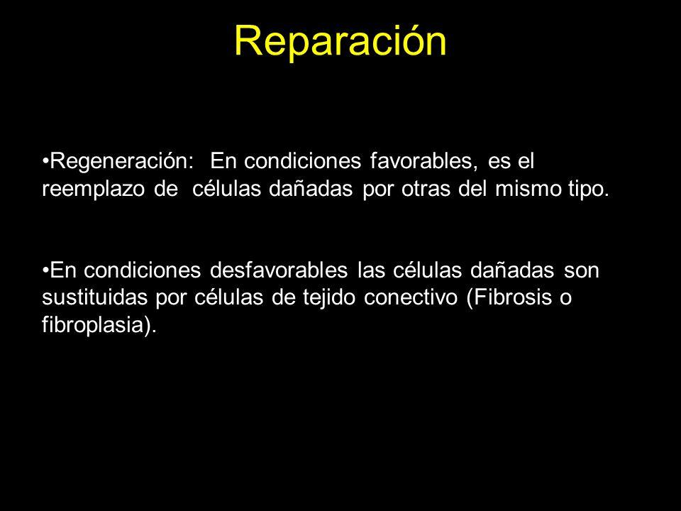 Reparación Factores que determinan si tejido dañado puede ser reparado por regeneración o por fibrosis: Tipo de tejido Magnitud del daño Capacidad de mitosis Integridad de membranas basales Disponibilidad de factores de crecimiento, etc.