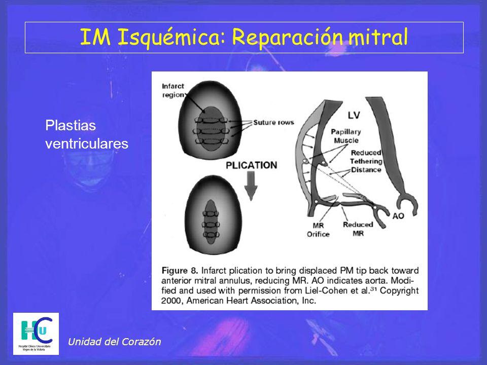 Unidad del Corazón Plastias ventriculares IM Isquémica: Reparación mitral