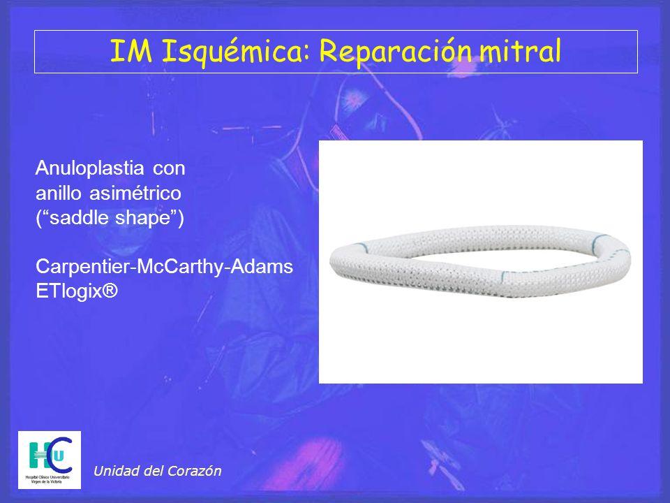 Unidad del Corazón Anuloplastia con anillo asimétrico (saddle shape) Carpentier-McCarthy-Adams ETlogix® IM Isquémica: Reparación mitral