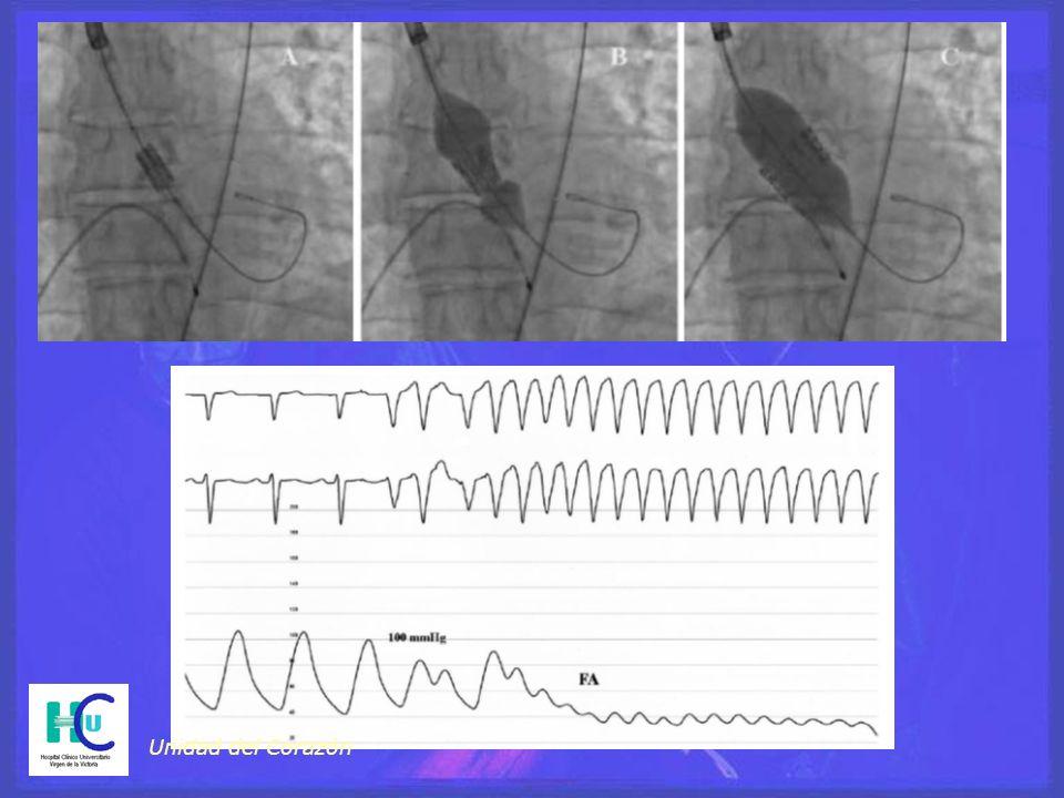 Unidad del Corazón APTC CABG 1º aislado ETE Intraop o postop +/- Reparación Tratamiento Quirúrgico: Indicaciones IM aguda con rotura Cirugía IM aguda sin rotura BALANCEAR:Isquemia severa -- IAM Severidad de la IM Riesgo +/- Reparación
