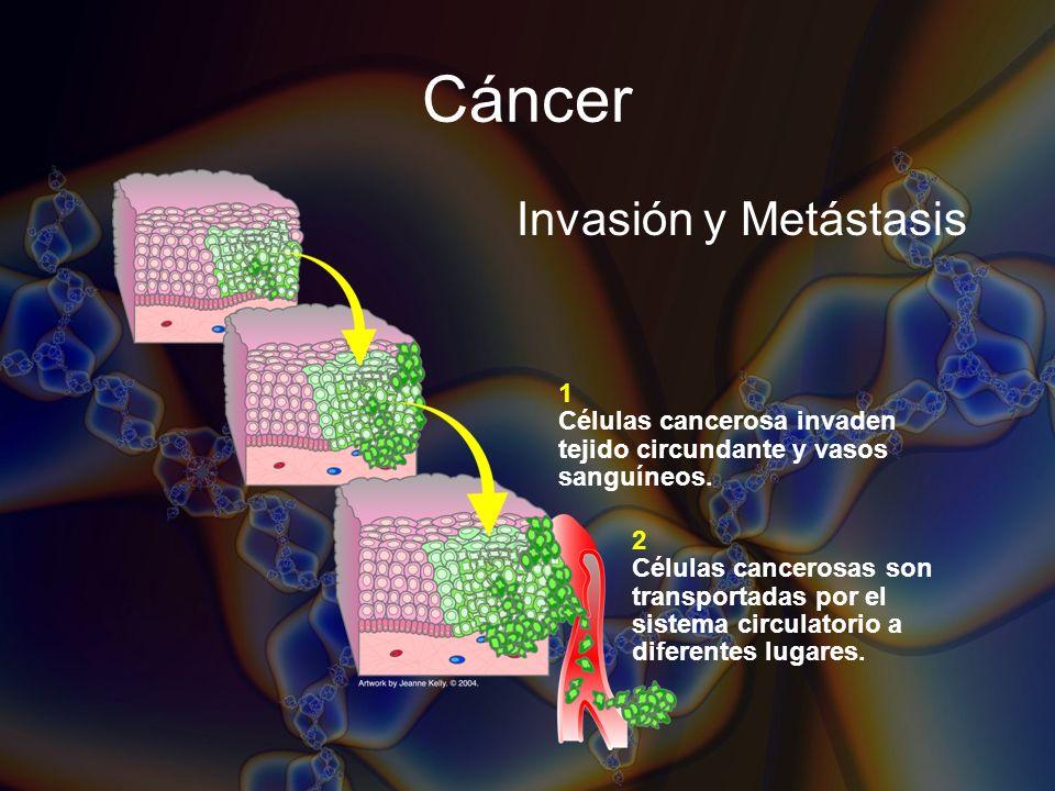 Cáncer Invasión y Metástasis 1 Células cancerosa invaden tejido circundante y vasos sanguíneos. 2 Células cancerosas son transportadas por el sistema