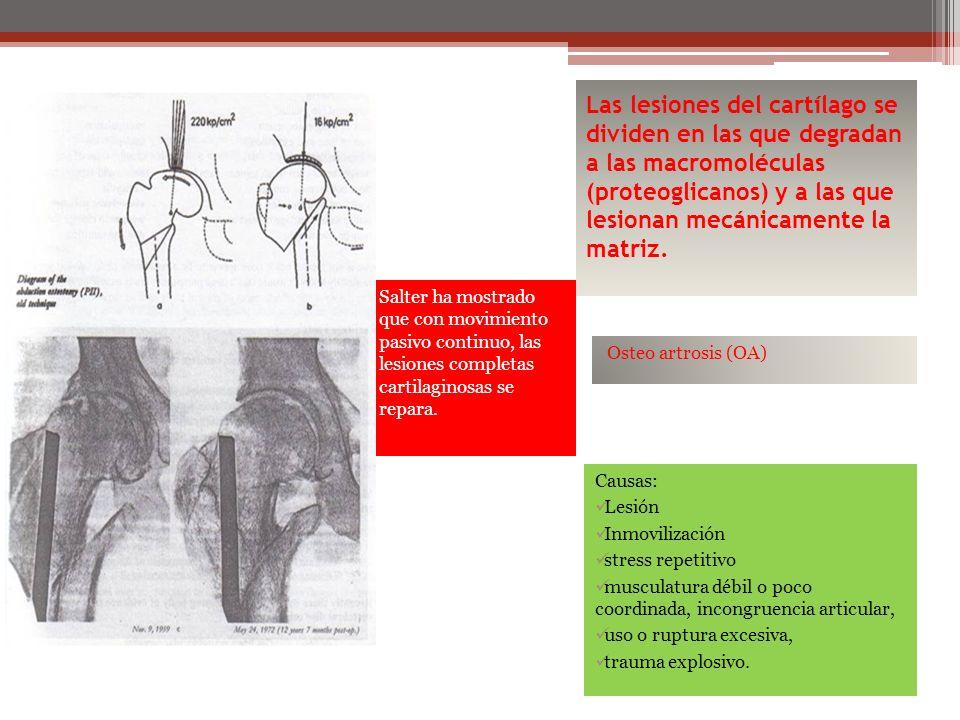 Las lesiones del cartílago se dividen en las que degradan a las macromoléculas (proteoglicanos) y a las que lesionan mecánicamente la matriz.