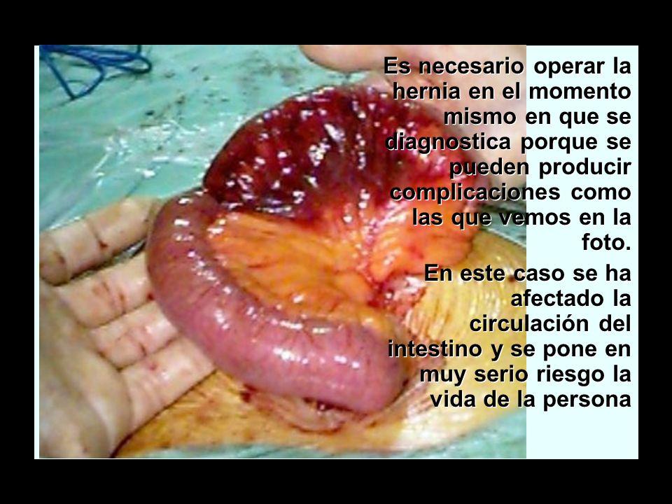 La hernia inguinal Es necesario operar la hernia en el momento mismo en que se diagnostica porque se pueden producir complicaciones como las que vemos