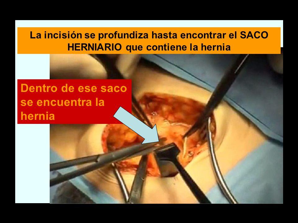 La incisión se profundiza hasta encontrar el SACO HERNIARIO que contiene la hernia Dentro de ese saco se encuentra la hernia