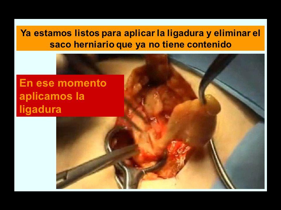 Ya estamos listos para aplicar la ligadura y eliminar el saco herniario que ya no tiene contenido En ese momento aplicamos la ligadura
