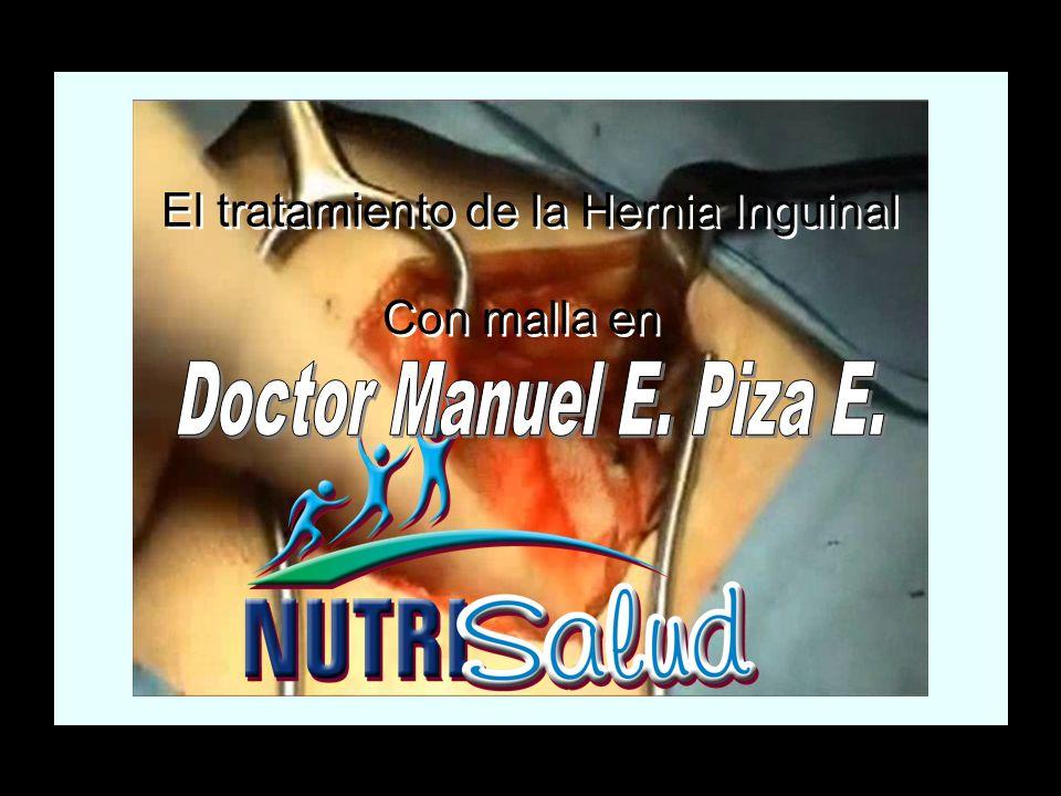 El tratamiento de la Hernia Inguinal Con malla en