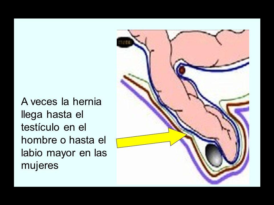 A veces la hernia llega hasta el testículo en el hombre o hasta el labio mayor en las mujeres