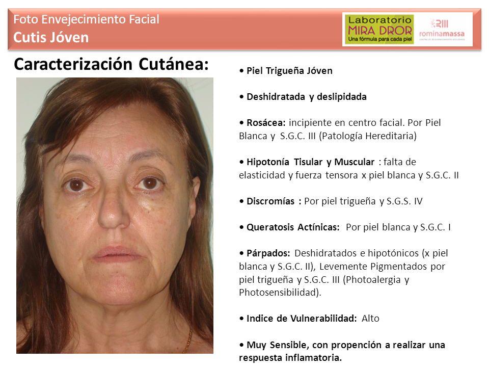 Piel Trigueña Jóven Deshidratada y deslipidada Rosácea: incipiente en centro facial. Por Piel Blanca y S.G.C. III (Patología Hereditaria) Hipotonía Ti