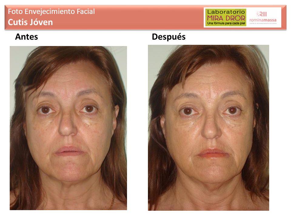 Antes Foto Envejecimiento Facial Cutis Jóven Foto Envejecimiento Facial Cutis Jóven Después