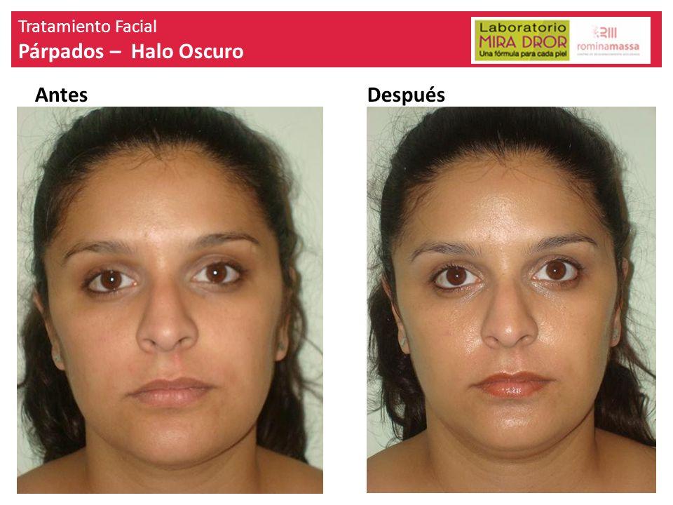Tratamiento Facial Párpados – Halo Oscuro AntesDespués