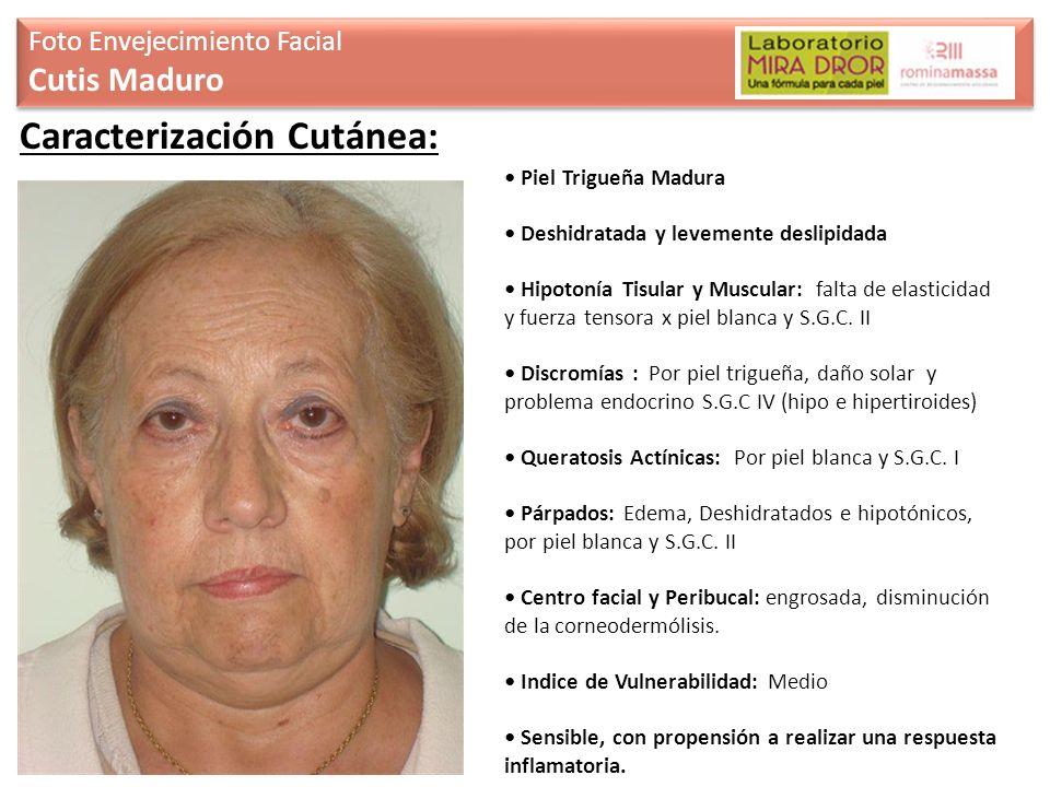 Foto Envejecimiento Facial Cutis Maduro Foto Envejecimiento Facial Cutis Maduro Caracterización Cutánea: Piel Trigueña Madura Deshidratada y levemente