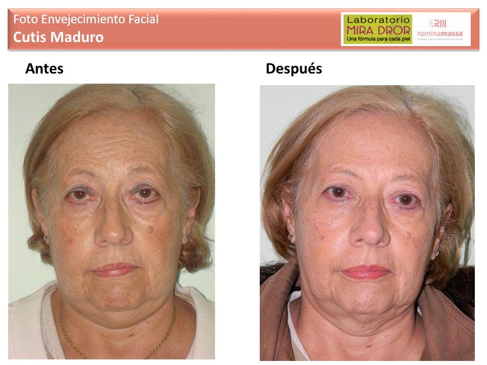 AntesDespués Foto Envejecimiento Facial Cutis Maduro Foto Envejecimiento Facial Cutis Maduro