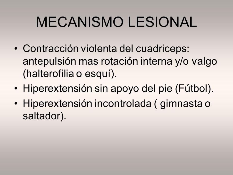 MECANISMO LESIONAL Contracción violenta del cuadriceps: antepulsión mas rotación interna y/o valgo (halterofilia o esquí). Hiperextensión sin apoyo de