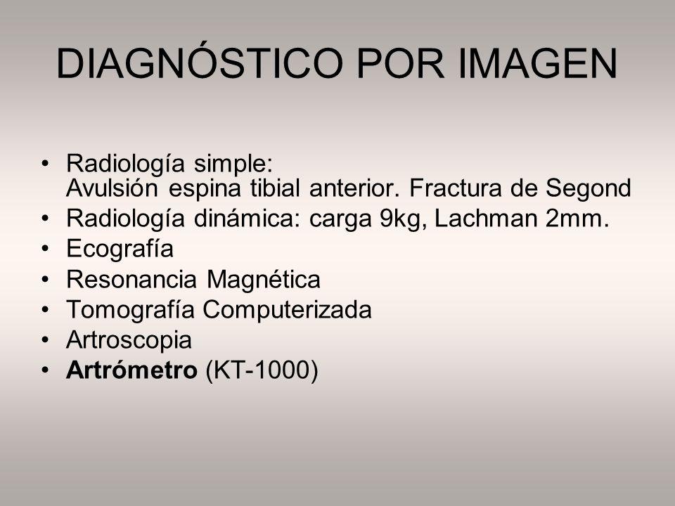DIAGNÓSTICO POR IMAGEN Radiología simple: Avulsión espina tibial anterior. Fractura de Segond Radiología dinámica: carga 9kg, Lachman 2mm. Ecografía R