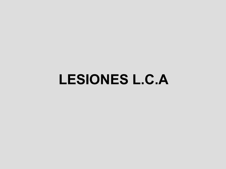 LESIONES L.C.A