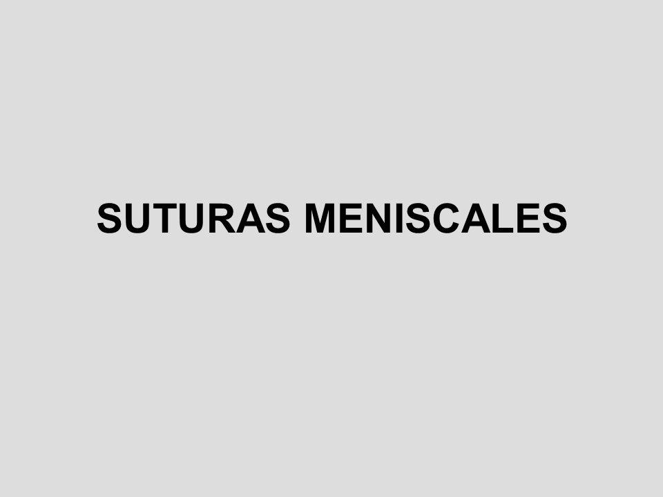SUTURAS MENISCALES