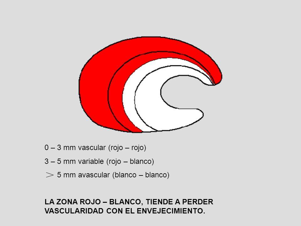 0 – 3 mm vascular (rojo – rojo) 3 – 5 mm variable (rojo – blanco) 5 mm avascular (blanco – blanco) LA ZONA ROJO – BLANCO, TIENDE A PERDER VASCULARIDAD CON EL ENVEJECIMIENTO.