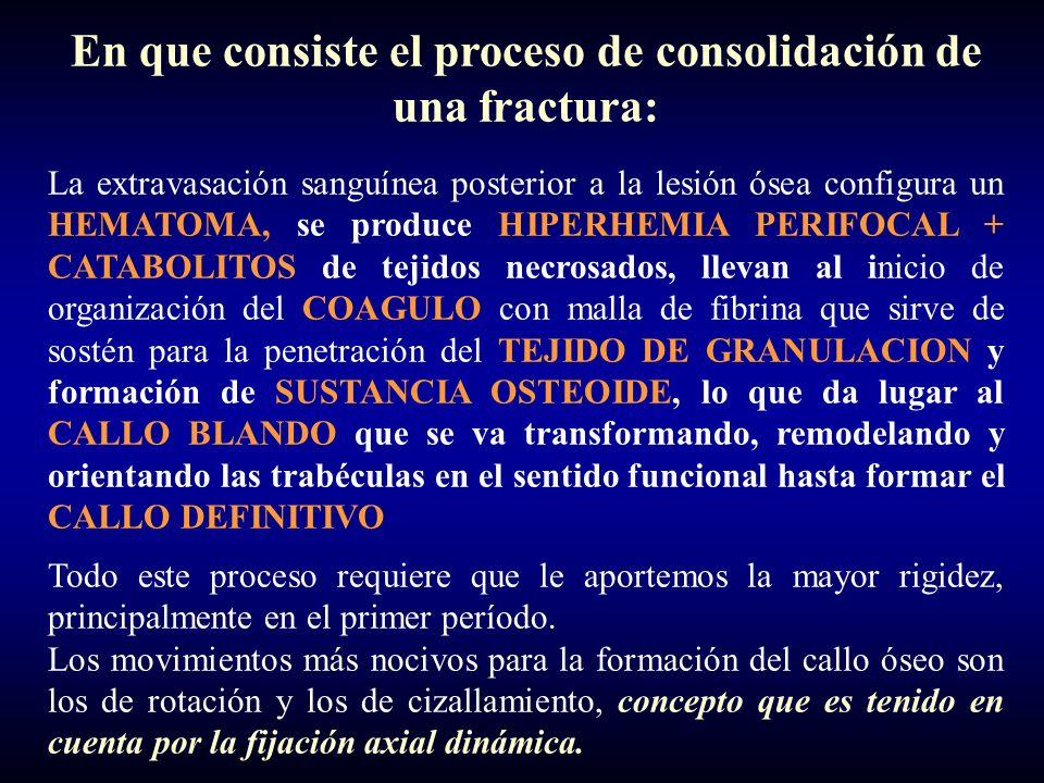 En que consiste el proceso de consolidación de una fractura: La extravasación sanguínea posterior a la lesión ósea configura un HEMATOMA, se produce HIPERHEMIA PERIFOCAL + CATABOLITOS de tejidos necrosados, llevan al inicio de organización del COAGULO con malla de fibrina que sirve de sostén para la penetración del TEJIDO DE GRANULACION y formación de SUSTANCIA OSTEOIDE, lo que da lugar al CALLO BLANDO que se va transformando, remodelando y orientando las trabéculas en el sentido funcional hasta formar el CALLO DEFINITIVO Todo este proceso requiere que le aportemos la mayor rigidez, principalmente en el primer período.
