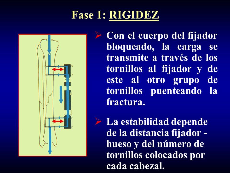 Fase 1: RIGIDEZ Con el cuerpo del fijador bloqueado, la carga se transmite a través de los tornillos al fijador y de este al otro grupo de tornillos puenteando la fractura.