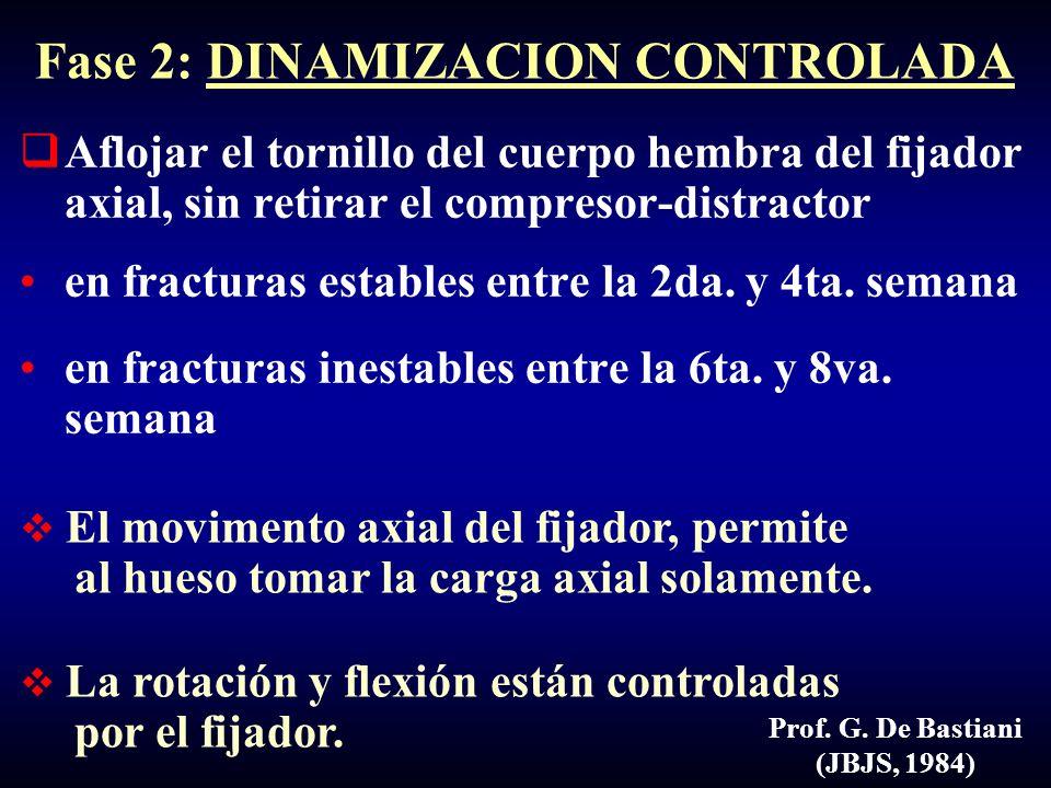 Prof. G. De Bastiani (JBJS, 1984) Aflojar el tornillo del cuerpo hembra del fijador axial, sin retirar el compresor-distractor en fracturas estables e