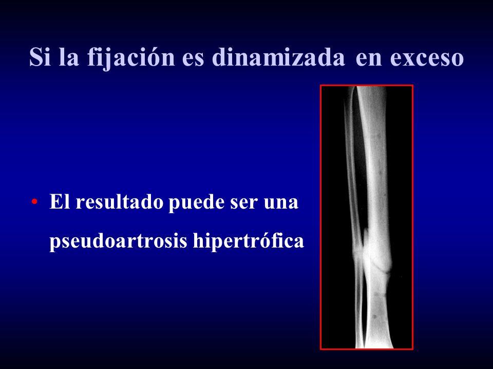 Si la fijación es dinamizada en exceso El resultado puede ser una pseudoartrosis hipertrófica