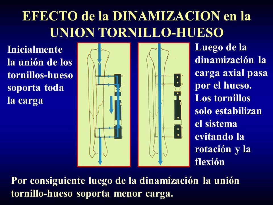 EFECTO de la DINAMIZACION en la UNION TORNILLO-HUESO Inicialmente la unión de los tornillos-hueso soporta toda la carga Luego de la dinamización la carga axial pasa por el hueso.