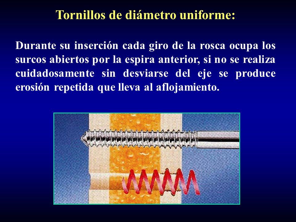 Tornillos de diámetro uniforme: Durante su inserción cada giro de la rosca ocupa los surcos abiertos por la espira anterior, si no se realiza cuidados