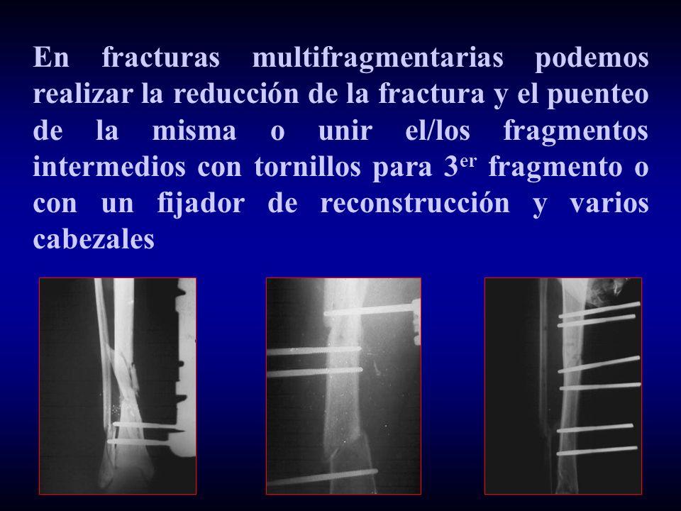 En fracturas multifragmentarias podemos realizar la reducción de la fractura y el puenteo de la misma o unir el/los fragmentos intermedios con tornillos para 3 er fragmento o con un fijador de reconstrucción y varios cabezales