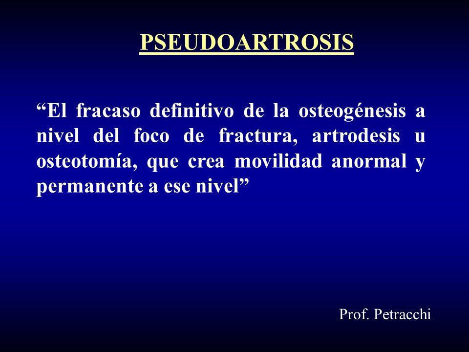 El fracaso definitivo de la osteogénesis a nivel del foco de fractura, artrodesis u osteotomía, que crea movilidad anormal y permanente a ese nivel PSEUDOARTROSIS Prof.