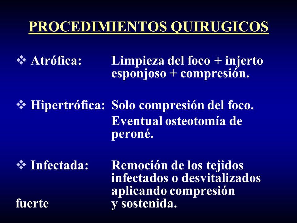 Atrófica: Limpieza del foco + injerto esponjoso + compresión. Hipertrófica:Solo compresión del foco. Eventual osteotomía de peroné. Infectada:Remoción
