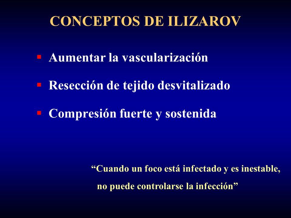 Aumentar la vascularización Resección de tejido desvitalizado Compresión fuerte y sostenida CONCEPTOS DE ILIZAROV Cuando un foco está infectado y es inestable, no puede controlarse la infección