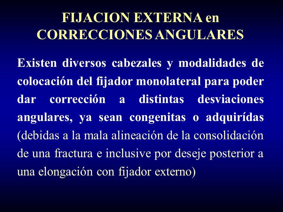 FIJACION EXTERNA en CORRECCIONES ANGULARES Existen diversos cabezales y modalidades de colocación del fijador monolateral para poder dar corrección a