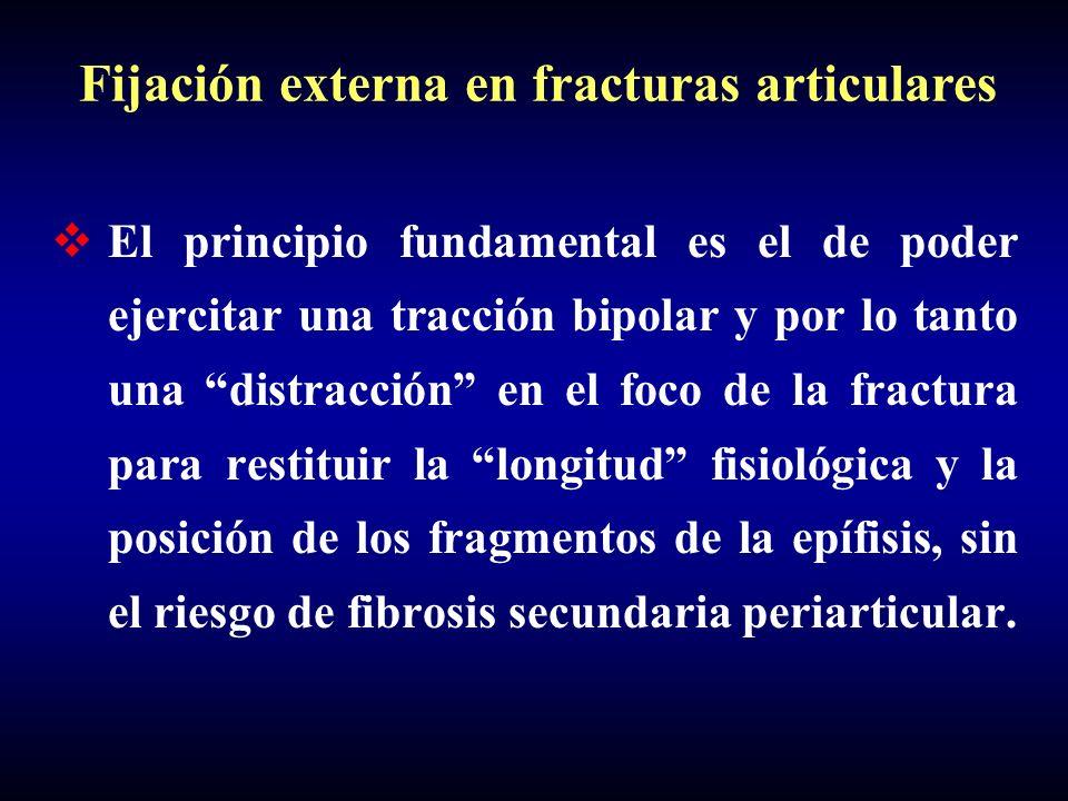 El principio fundamental es el de poder ejercitar una tracción bipolar y por lo tanto una distracción en el foco de la fractura para restituir la long