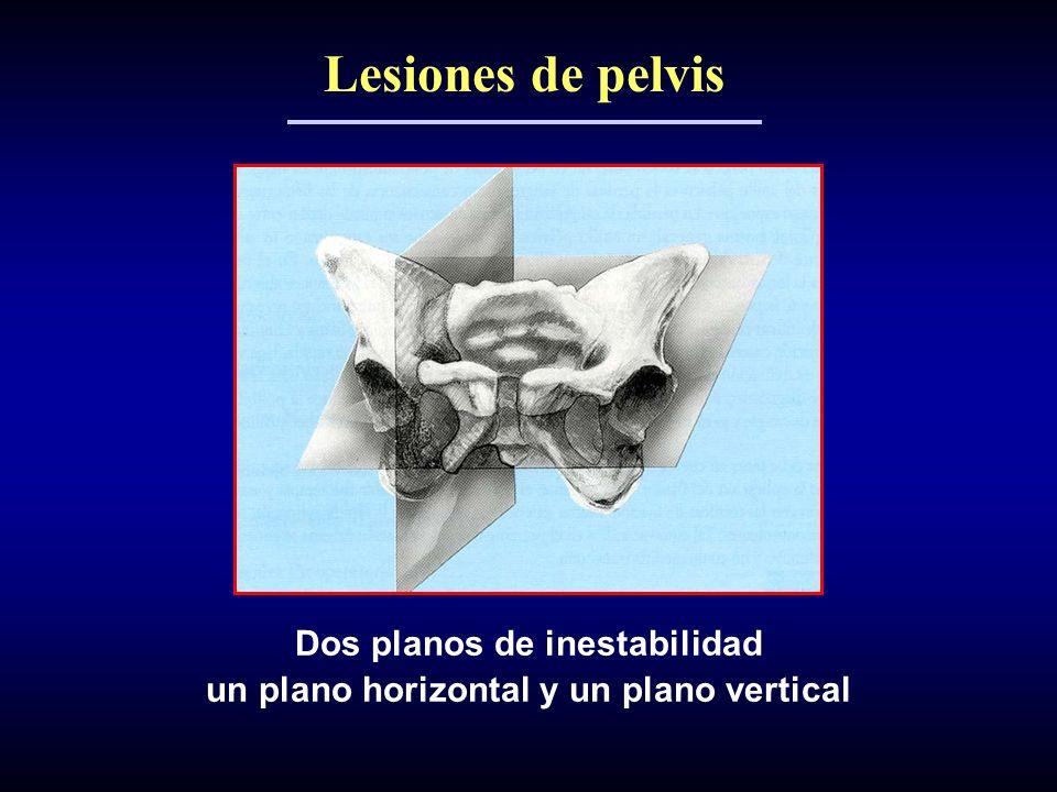 Lesiones de pelvis Dos planos de inestabilidad un plano horizontal y un plano vertical