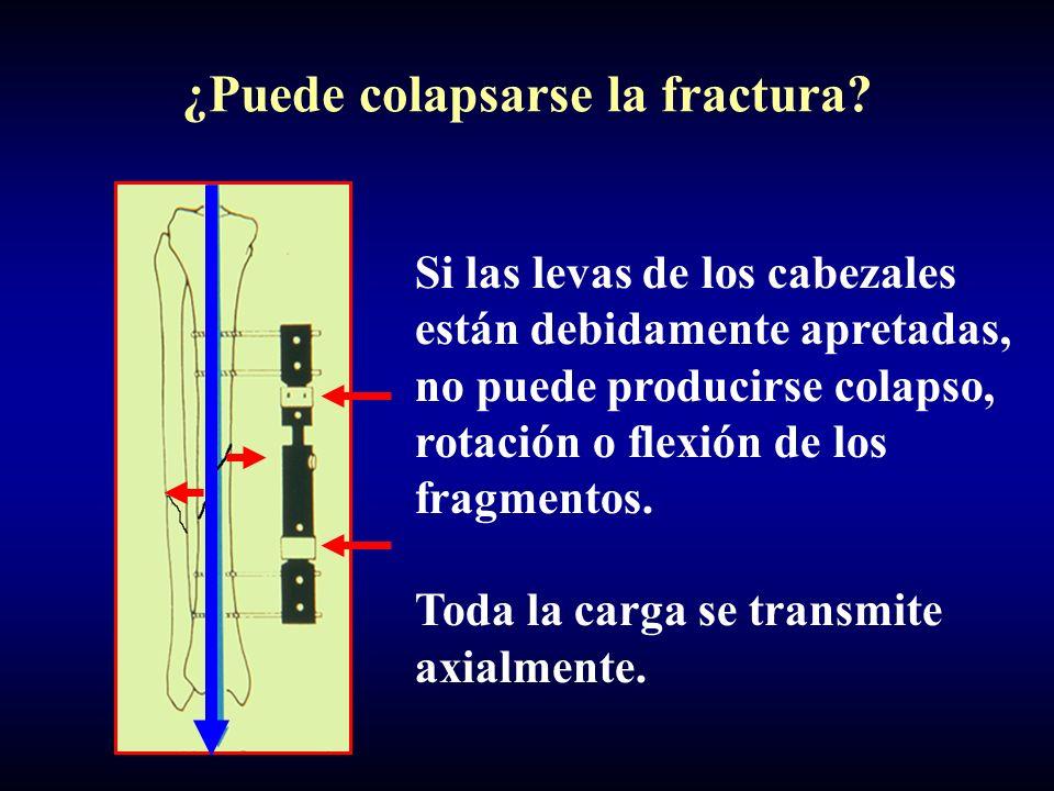 ¿Puede colapsarse la fractura? Si las levas de los cabezales están debidamente apretadas, no puede producirse colapso, rotación o flexión de los fragm