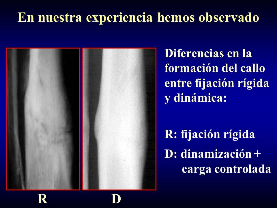 Diferencias en la formación del callo entre fijación rígida y dinámica: R: fijación rígida D: dinamización + carga controlada RD En nuestra experienci