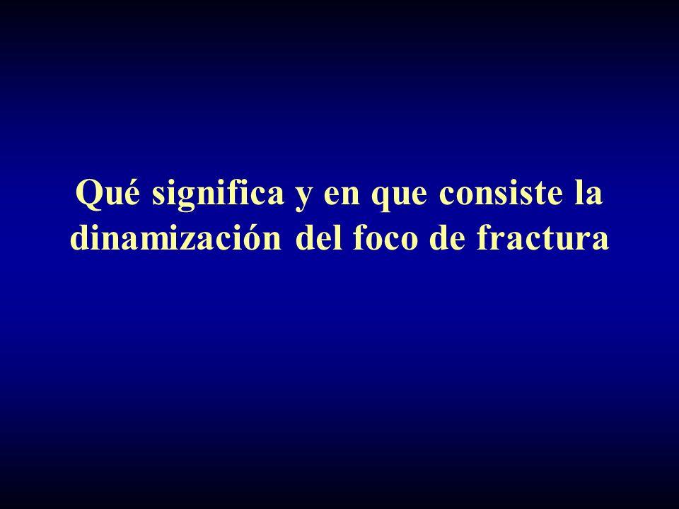 Qué significa y en que consiste la dinamización del foco de fractura