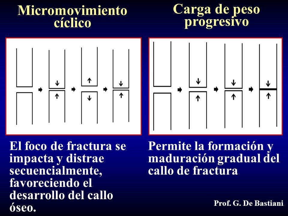 Micromovimiento cíclico El foco de fractura se impacta y distrae secuencialmente, favoreciendo el desarrollo del callo óseo.