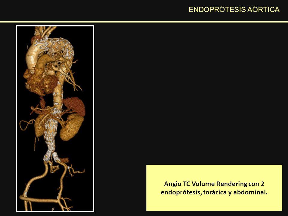 ENDOPRÓTESIS AÓRTICA En el estudio Angio TC MPR plano axial (A) y sagital (B) se evidencia marcada fuga de contraste por la aorta torácica hacia el saco aneurismático debido a la rotura protésica a ese nivel.