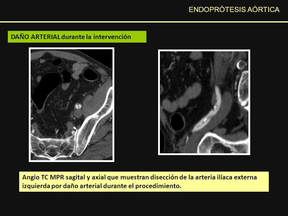 ENDOPRÓTESIS AÓRTICA Angio TC MPR sagital y axial que muestran disección de la arteria ilíaca externa izquierda por daño arterial durante el procedimiento.