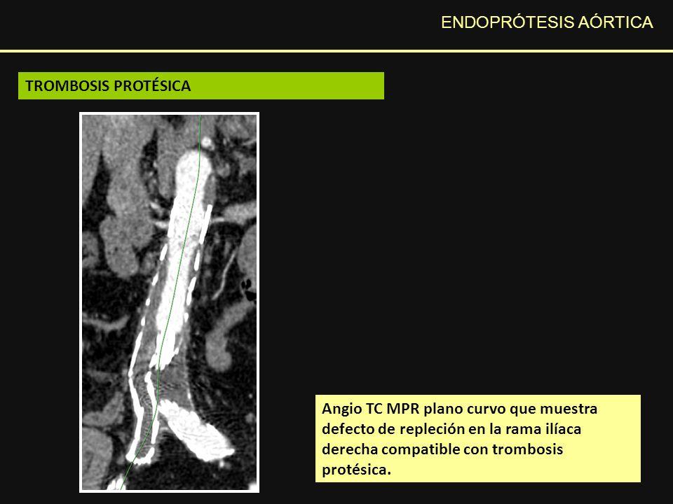 ENDOPRÓTESIS AÓRTICA Angio TC MPR plano curvo que muestra defecto de repleción en la rama ilíaca derecha compatible con trombosis protésica.