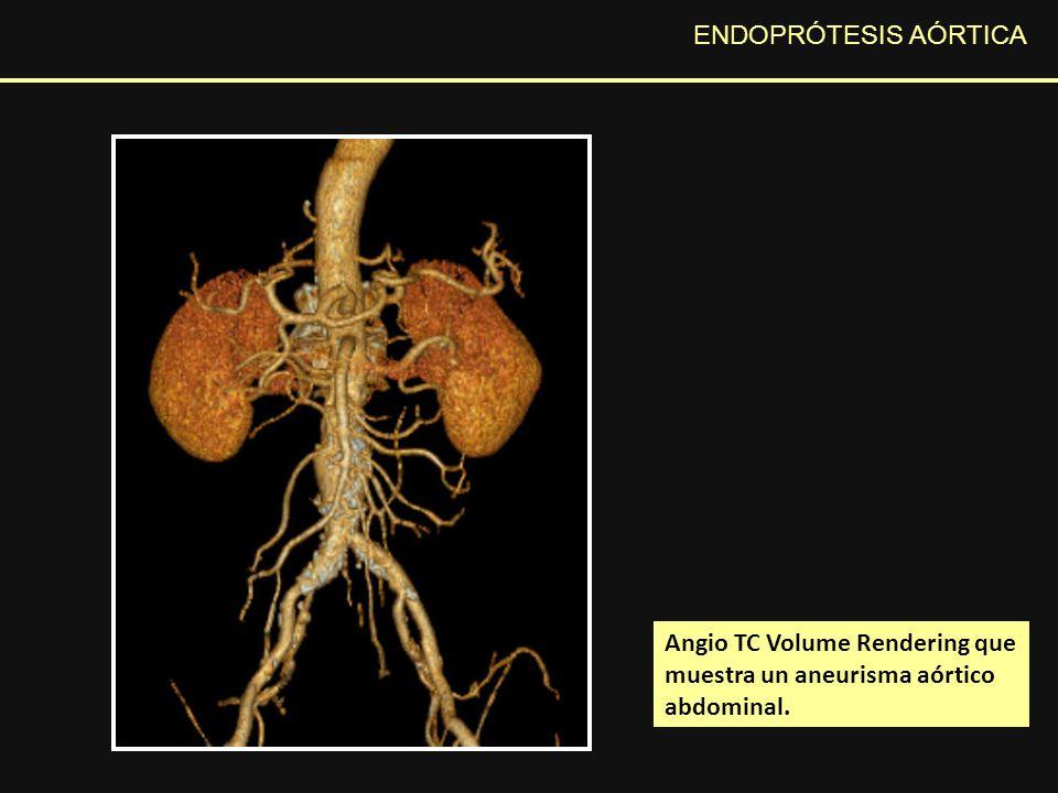 ENDOPRÓTESIS AÓRTICA Endofuga s DescripciónOrigenTratamiento IDeficiente sellado del stent Cuello proximal o distal Extensión proximal o distal IIFlujo retrogrado por colaterales Arteria mesentérica inferior o arterias lumbares Observación Embolización IIIAlteración estructural de la prótesis Tejido roto Separación modular Nueva prótesis Tipos de endofugas más frecuentes