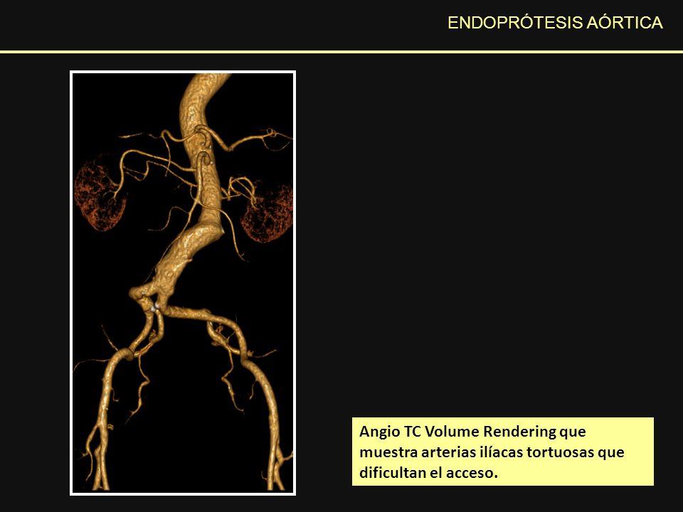 ENDOPRÓTESIS AÓRTICA Imagen angio TC en corte axial que muestra una burbuja aérea dentro del saco aneurismático en el estudio de control postquirúrgico inmediato, hallazgo en relación a cambios postquirúrgicos sin significado patológico.