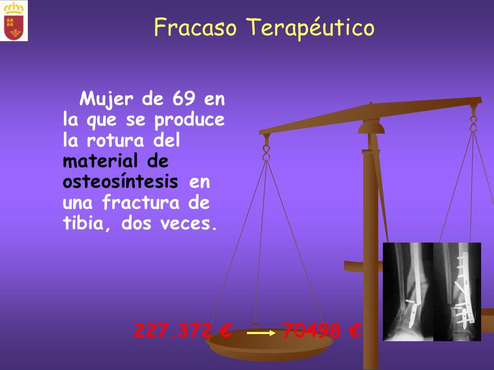 Fracaso Terapéutico Mujer de 69 en la que se produce la rotura del material de osteosíntesis en una fractura de tibia, dos veces.